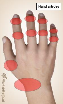 Illustratie van een hand met hand artrose
