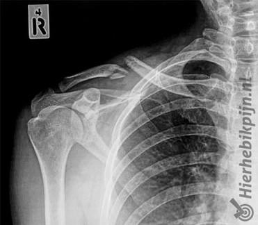 rontgenfoto van een gebroken sleutelbeen