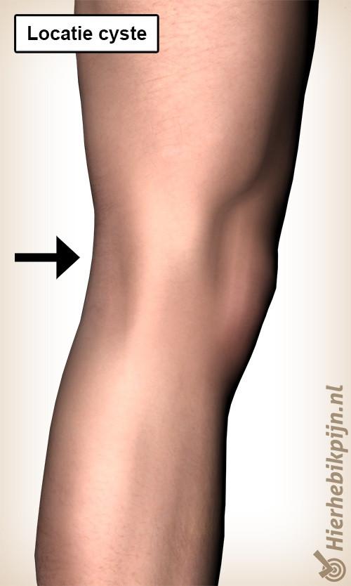 Knie illustratie met pijn naar knieholte