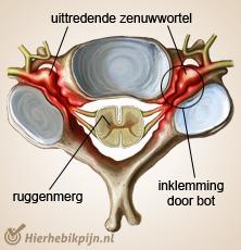 nekwervel kolom doorsnede met uitredende zenuwwortel aanduiding