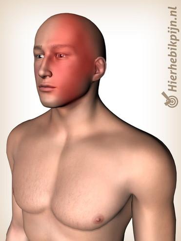 illustratie man met clusterhoofdpijn