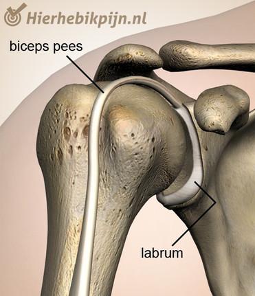 schouder-labrum-biceps-peesjpg