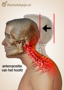 illustratie hoofd nek cervicaal houdingssyndroom