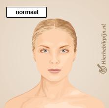 illustratie blonde vrouw met normale nek houding