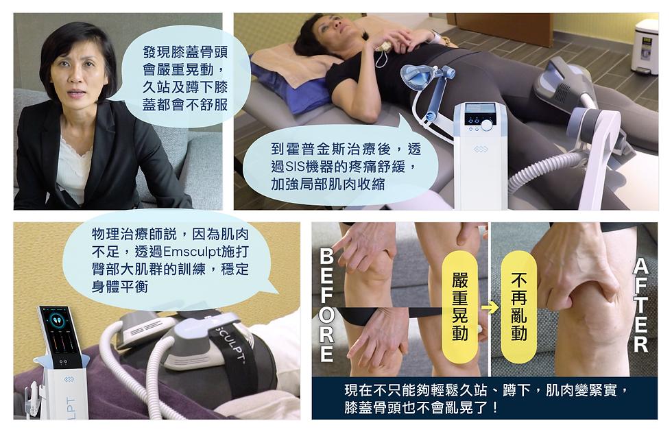 膝蓋疼痛.png
