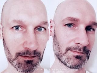 malebrows.jpg