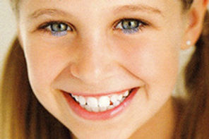 child smiling with white healthy teeth