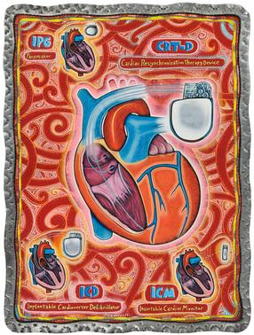 Medtronic Poster art