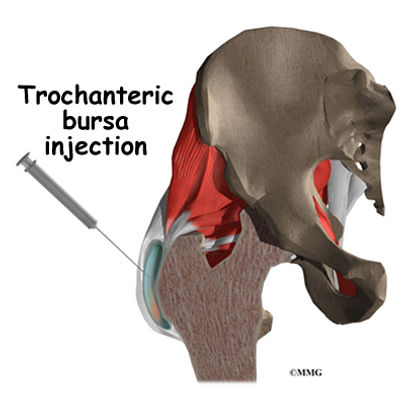 Burd PT Hip Trochanteric Bursa Diagnosis