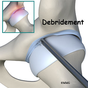 Burd PT Hip Labral Tear Debridement