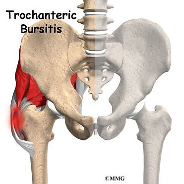Burd PT Hip Trochanteric Brusitis