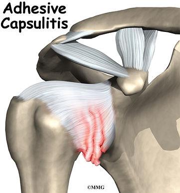 Burd PT Shoulder Adhesive Capsulitis