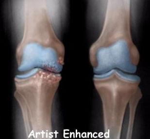 Burd PT Osteoarthritis Knee Diagnosis