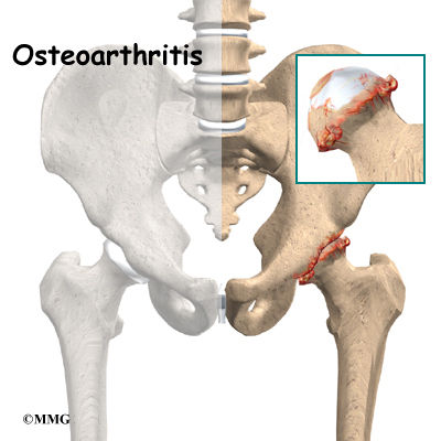 Burd PT Osteoarthritis of the Hip