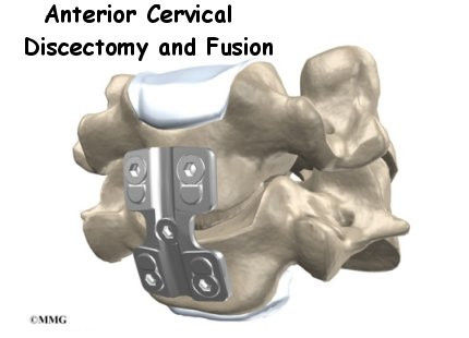 Burd PT Anterior Cervical Discectomy and Fusion