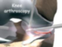 Burd PT Knee Meniscus Treatment