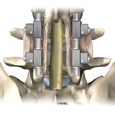 Burd PT Lumbar Posterior Fusion Surgery