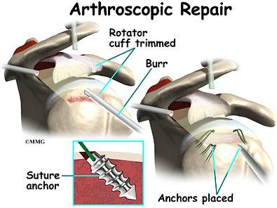 Burd PT Rotator Cuff Arthroscopic Repair