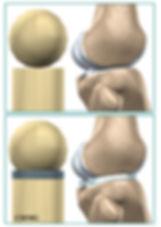 Burd PT Knee Meniscus Anatomy