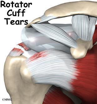 Burd PT Rotator Cuff Tear