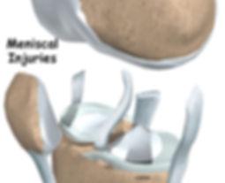 Burd PT Knee Meniscus Injuries
