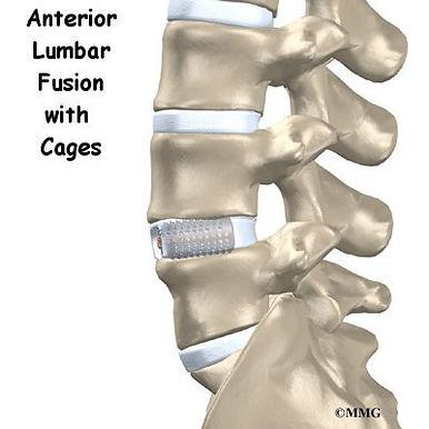Burd PT Anterior Lumbar Fusion with Cages