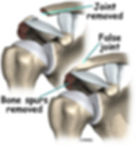 Burd PT Shoulder Impingement Open Procedure