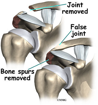 Burd PT Shoulder Impingement Open Procedure