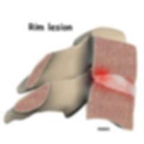 Burd PT Rim Lesion