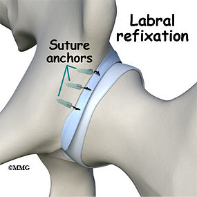 Burd PT Hip Labral Tear Refixation