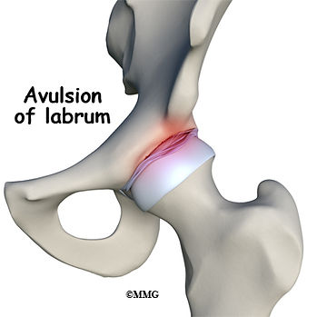 Burd PT Hip Labral Tear Avulsion