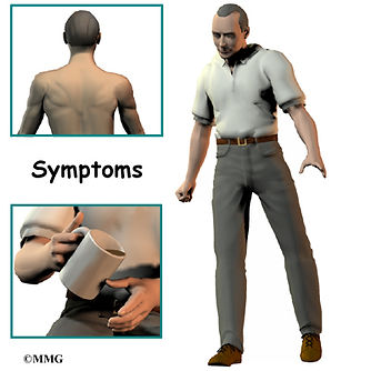 Burd PT Cervical Stenosis Symptoms