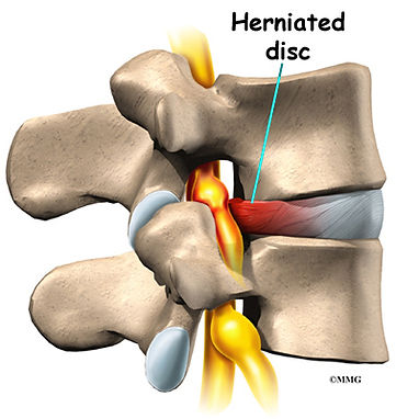 Burd PT Herniation Cause