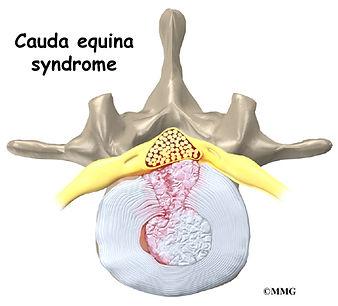 Burd PT Cauda Equina Syndrome