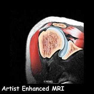 Burd PT Rotator Cuff Tear Diagnosis
