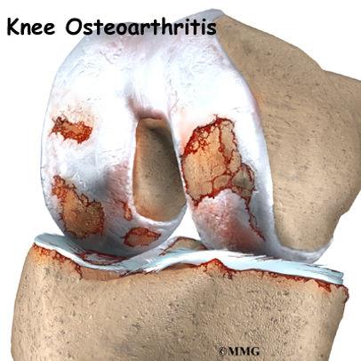 Burd PT Osteoarthritis of the Knee