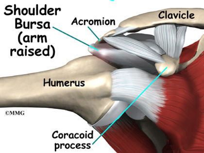 Burd PT Cause of Rotator Cuff Tear