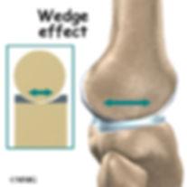 Burd PT Knee Wedge Effect