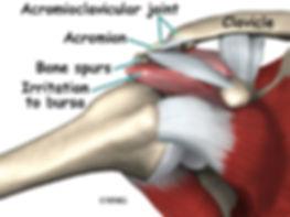 Burd PT Shoulder Impingement Causes