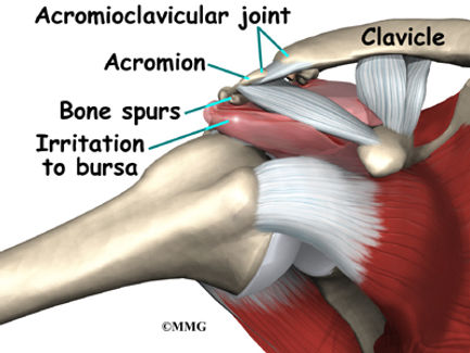 Burd PT Shoulder Impingement Causes
