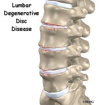 Burd PT Lumbar Degenerative Disease