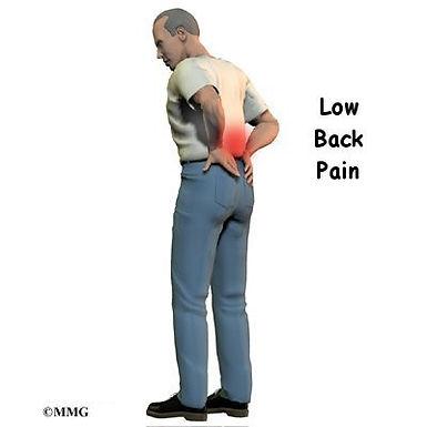 Burd PT Lower Back Pain