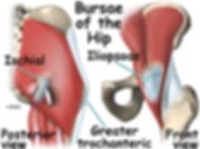 Burd PT Bursae of the Hip