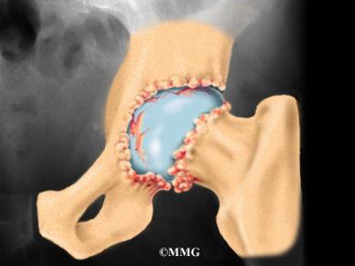 Burd PT Osteoarthritis of the Hip Symptoms