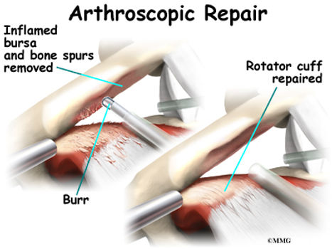 Burd PT Shoulder Impingement Surgery