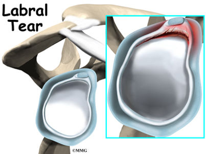 Burd PT Shoulder Labral Tear