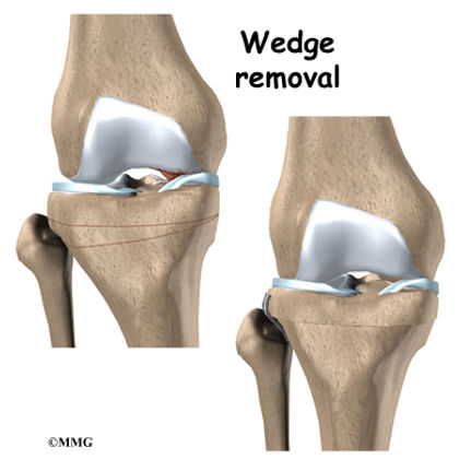 BURD PT Knee Osteoarthritis Surgery