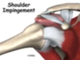 Burd PT Shoulder Impingement