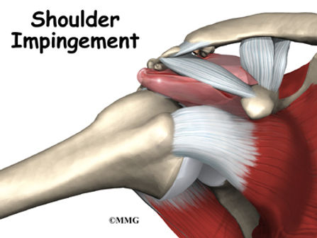 Burd PT Shoulder Impingement