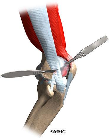 Burd PT Knee IT Band Surgery